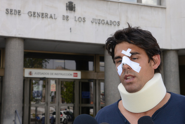 Thomas Drouet Tennis Player Thomas Drouet Left with Broken Nose after Bernard Tomics Dad Headbutts Him